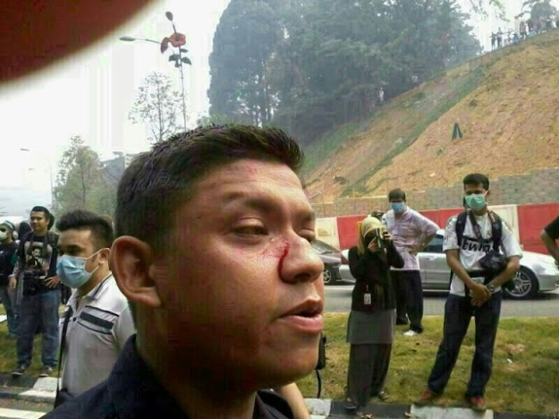 The police officer who was injured by the violent demonstrators.