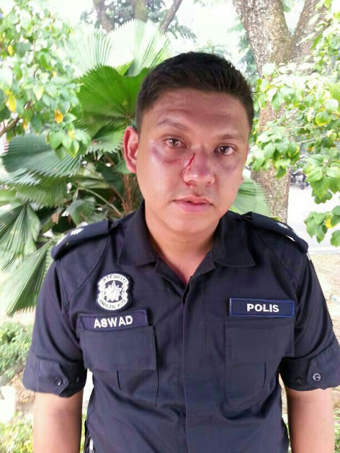 Police Officer Insp Aswad, who was punched by the demonstrator.