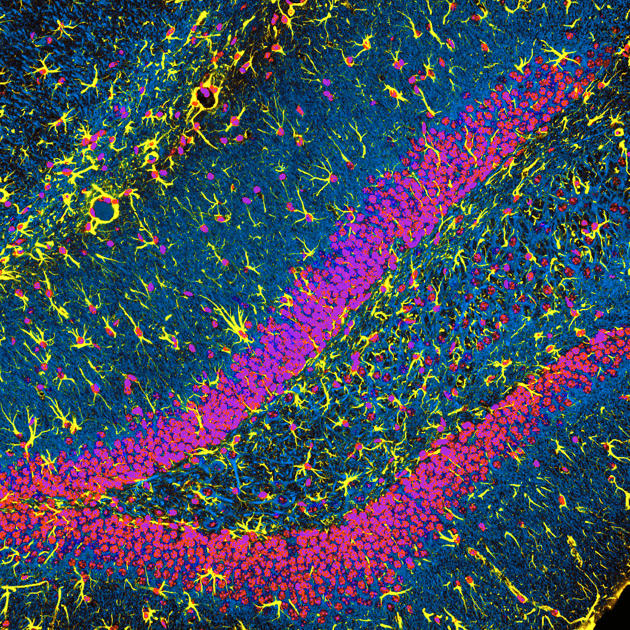 Dr. Chris Henstridge MTA-KOKI Budapest, Hungary Golden Glia Immunofluorescence 20X(courtesy of Nikon Small World)