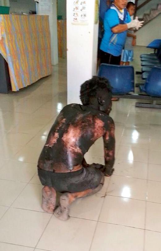 SRI AMAN 22 NOVEMBER 2014 (ONLINE).Salah seorang mangsa letupan lombong arang batu dibawa ke Hospital Serian,dalam kejadian letupan lombong arang batu di kuari Silantek Pantu,Sri Aman yang mengorbankan tiga nyawa setakat ini.